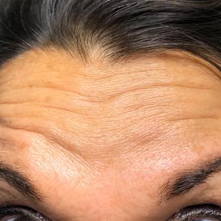 Female 48 years