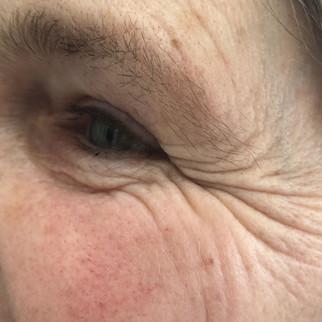 Female 50 years
