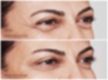 Voor en na botox rond ogen.jpg