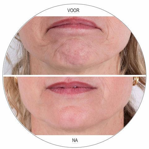 Botox kin en mondhoekjes voor en na Dokter Marsha Wichers