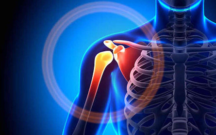 shoulder-pain-7-warning-signs-doctor-100