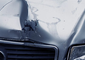 Paintless Dent Repair1