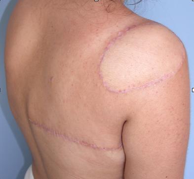 Rinoplasti, Burun estetiği, Burun ameliyatı