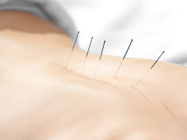 Who uses acupuncture?