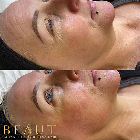 💎BESPOKE SKIN TREATMENT!💎 These result