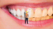 blanqueamiento dental.jpg