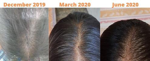 Hairfall Treatment Through Homoeopathy