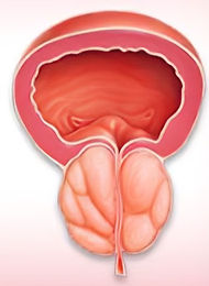 Benign Prostatic Enlargement