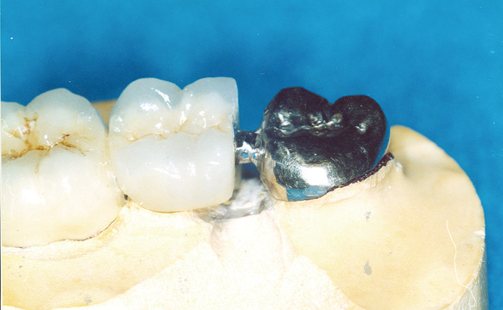 dental-lab-welding-crowns