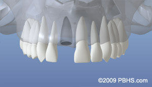 dentalimplant_02.jpg
