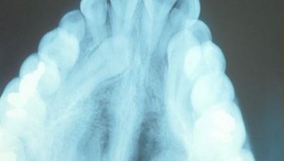 impacted-tooth1-full.jpg