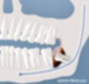 wisdom-tooth-cyst-formation.jpg
