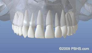 dentalimplant_01.jpg