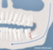 wisdom-tooth-damaging-other-tooth.jpg