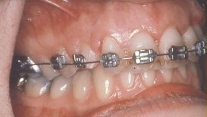impacted-tooth6-full.jpg