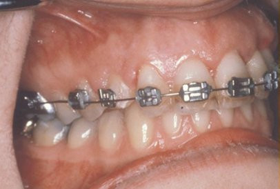 impacted-tooth6-full.jpg