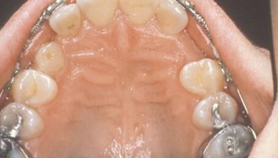 impacted-tooth2-full.jpg