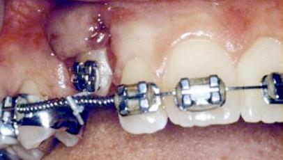 impacted-tooth5-full.jpg
