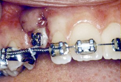 impacted-tooth5-full.jpg