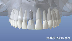 dentalimplant_06.jpg