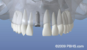 dentalimplant_05.jpg