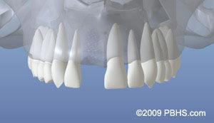 dentalimplant_03.jpg