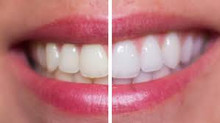 Whiten teeth safely