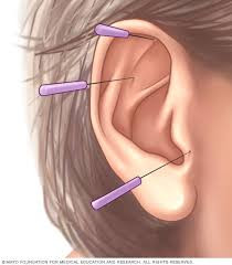 Health Benefits of Ear Acupuncture