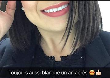 Sourire Concept-Service de Blanchiment Dentaire.