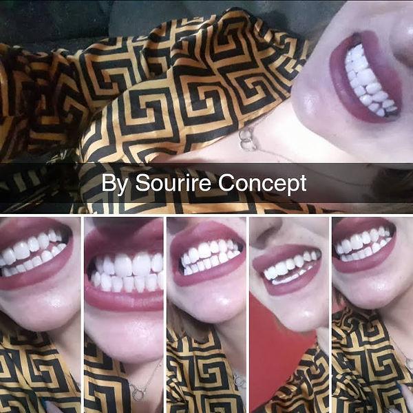 Sourire Concept-Service de Blanchiment Dentaire