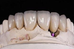 implantat_schneider1.jpg