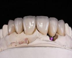 implantat_schneider1