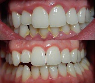 Gingivitis Pompano Beach