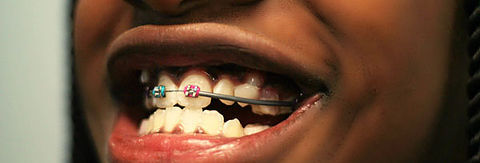 Orthodontics Pompano Beach