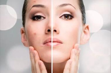 hydra medic acne.webp