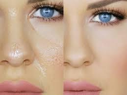 Aprenda a combatir el exceso de grasa de la cara