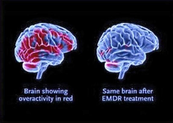 Brain%2520Scan%2520Before%2520after%2520EMDR_edited_edited.jpg