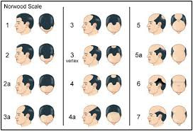 Classify Your Hair Thinning and Loss