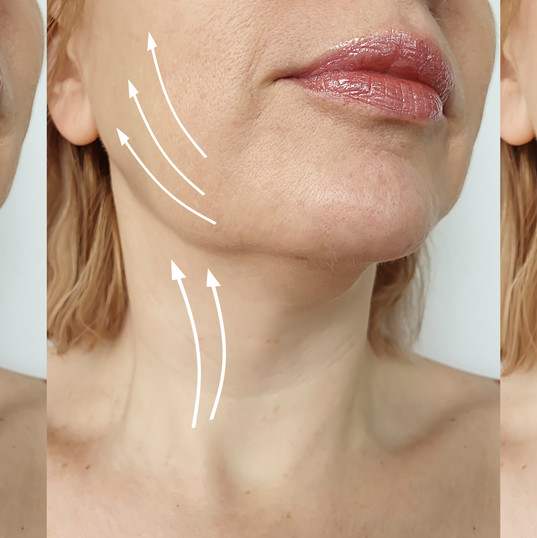 woman double chin before and after treat