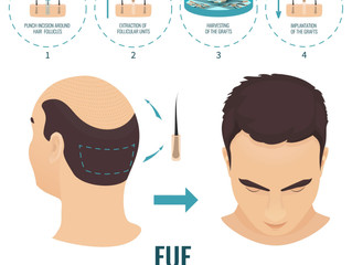 Advantages of Using Follicular Unit Extraction (FUE) To Reverse Baldness
