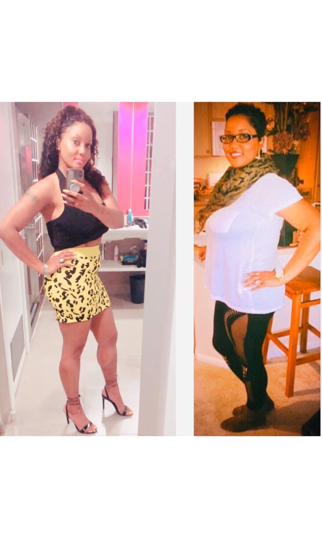 My Journey to Weight-Loss