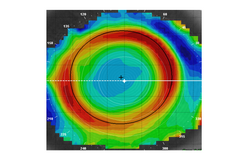Topography after Corneal Reshaping