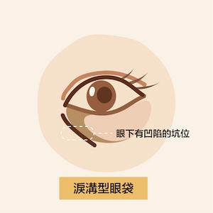 眼袋下有凹陷的坑位,黑眼圈下有凹陷的坑位,可能由眼頭延伸至眼尾特徵及原因