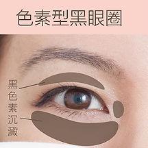 香港激光去色素型黑眼圈療程
