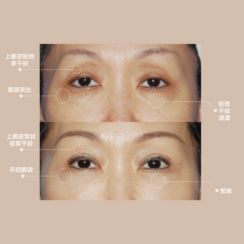 淚溝眼袋黑眼圈眼紋療程