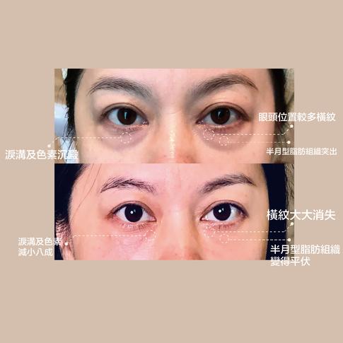 提升眼部皮膚飽滿度彈性