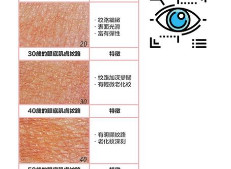 【黑眼圈眼袋眼紋療程】黑眼圈、眼紋、眼袋會搶走眼睛的神采?! Miracle 18