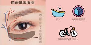 顏色呈青色/紅藍色/紅色,因為血液循環不良引致眼周肌膚泛青紅色。有三種人最容易出現這種:一,怕冷體質/血液循環不好的人,;二,運動不足/整天坐著不動的人;三,睡眠不足/生活作息不規律的人。為什麼血液循環不良會引發黑眼圈呢?因為眼周分布著很多靜脈毛細管, 靜脈負責回收代謝產品和毒素,如果循環差的話,毒素色素便堵塞毛細血管。