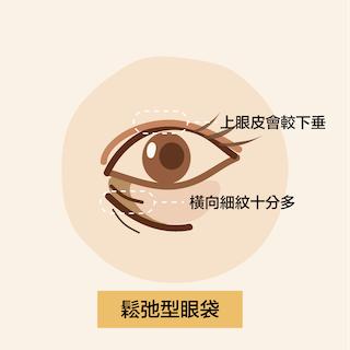 【去眼袋方法】3大眼袋種類的特徵及治療方法!|Miracle 18
