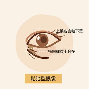 眼下橫向細紋十分多、上眼皮會較下垂是眼袋出現的特徵及原因